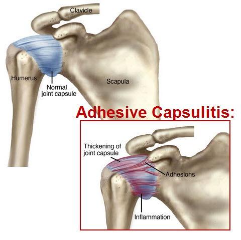 Adhesive Capsuilitis