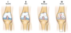 knee progression